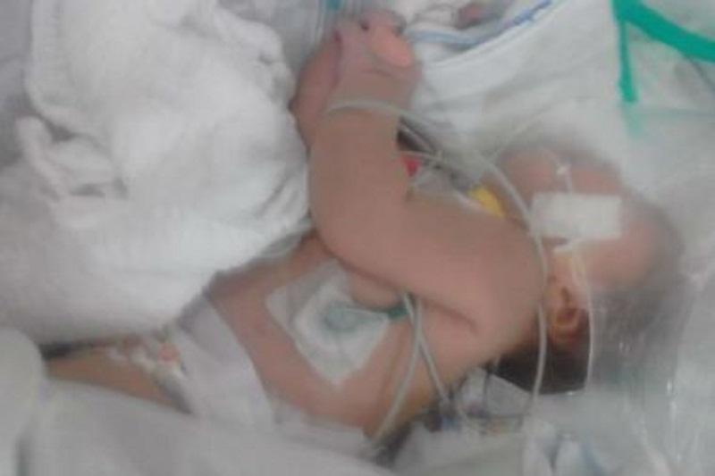 Sudoeste: Bebê sobrevive após ser picada 5 vezes por escorpião em Vitória da Conquista
